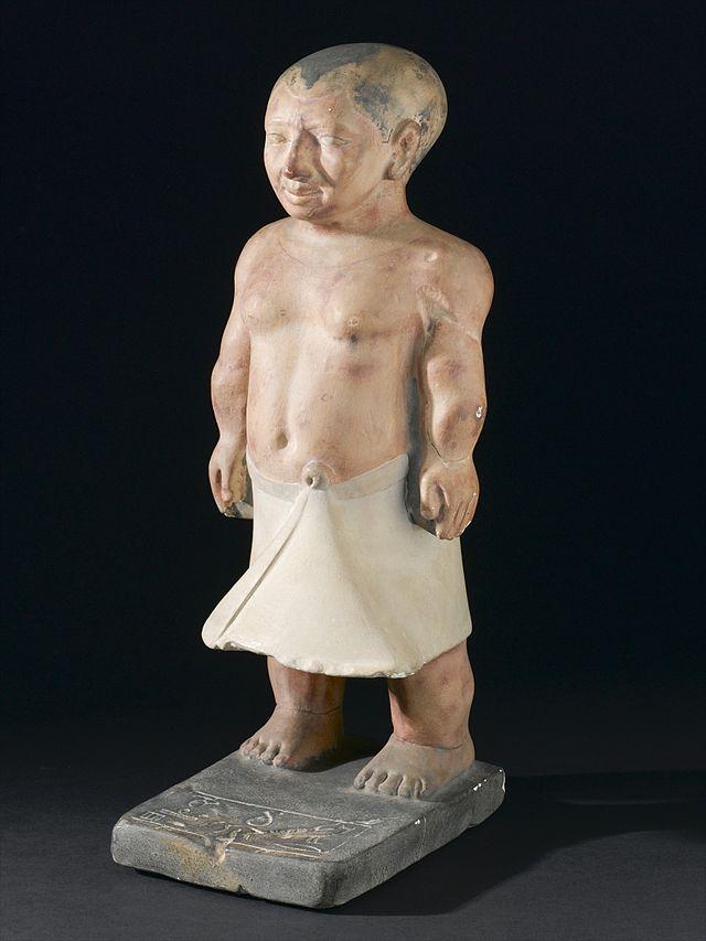 Plaster_statue_of_the_dwarf_chnoum-hotep,_a_victim_of_achond_Wellcome_L0058422.jpg